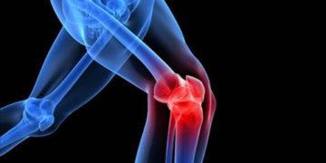 Científicos chilenos obtienen buenos resultados en terapia celular para tratar artrosis de rodilla