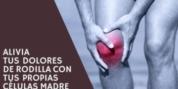 Recell El tratamiento de artrosis de rodilla con Terapia Biológica detiene la progresiva pérdida de cartílago