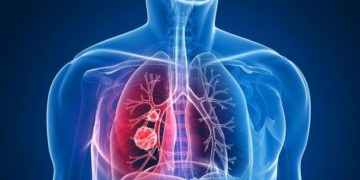 La innovación que revoluciona el modo de tratar el cáncer de pulmón